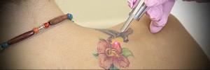 Татуировки и их удаление 3