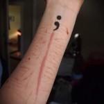 кавычки на руку - женская татуировка на шраме - перекрытие - фотокавычки на руку - женская татуировка на шраме - перекрытие - фото