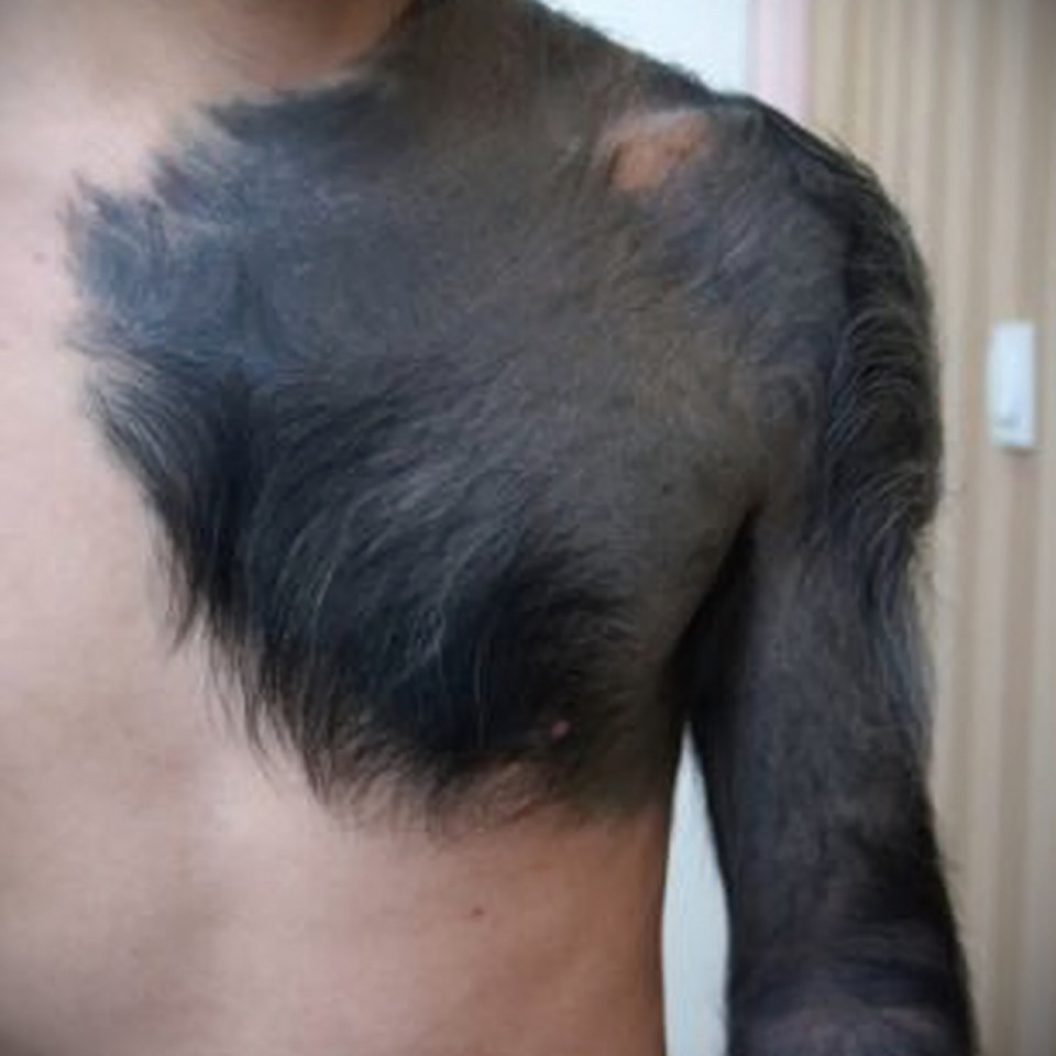 Как сделать тату если есть родинки