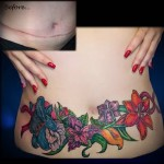 яркие цветы на живот после операции - женская татуировка на шраме - перекрытие - фото