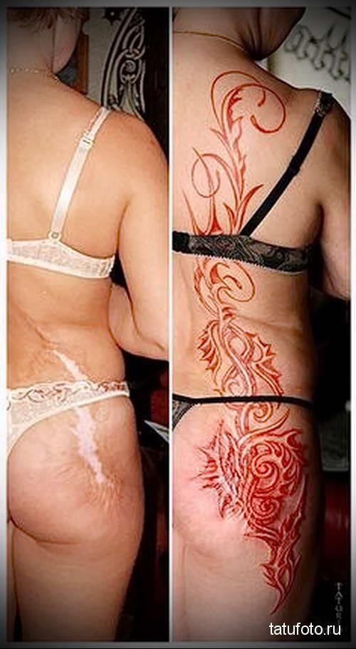 спина и ягодица в цветах - женская татуировка на шраме - фото