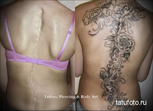 цветы на позвоночнике - женская татуировка на шраме - перекрытие - фото
