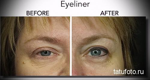 татуаж глаз фото до и после отзывы 1