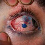 тату на глазах последствия - пример на фото от 22052016 7