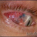 тату на глазах последствия - пример на фото от 22052016 10тату на глазах последствия - пример на фото от 22052016 10