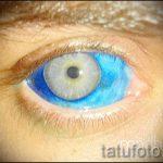тату на глазах последствия - пример на фото от 22052016 16