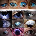 тату на глазах последствия - пример на фото от 22052016 18