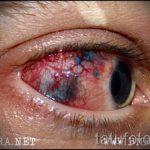 тату на глазах последствия - пример на фото от 22052016 8