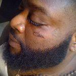 тату под глазом - пример на фото от 22052016 2