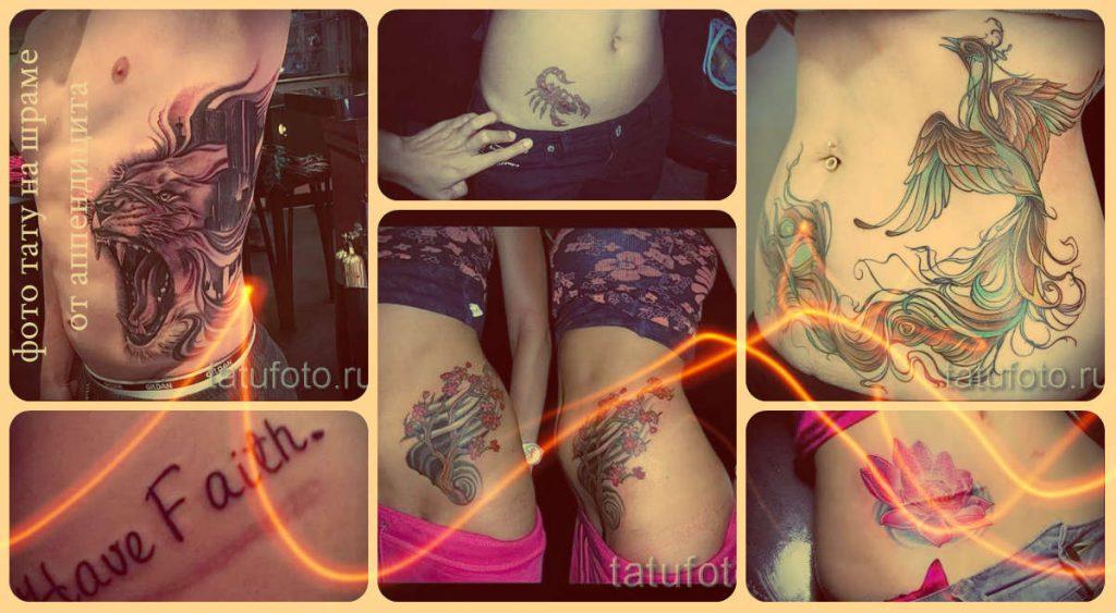 Тату на шраме от аппендицита фото - интересные варианты рисунков в готовой татуировке