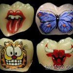 тату на зубах №432 - классный вариант рисунка, который удачно можно использовать для переработки и нанесения как Tattoo on teeth