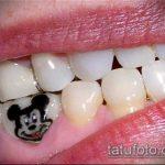 тату на зубах №326 - достойный вариант рисунка, который удачно можно использовать для доработки и нанесения как Tattoo on teeth