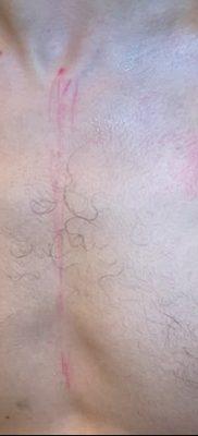 фото тату звезды на плечах от 19.09.2017 №041 – tattoo of a star on the shoul – tatufoto.com