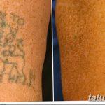 фото Выведение тату лазером от 14.01.2018 №011 - Laser tattoo removal - tatufoto.com