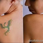 фото Выведение тату лазером от 14.01.2018 №016 - Laser tattoo removal - tatufoto.com