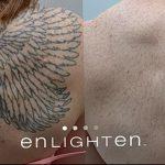 фото Выведение тату лазером от 14.01.2018 №020 - Laser tattoo removal - tatufoto.com