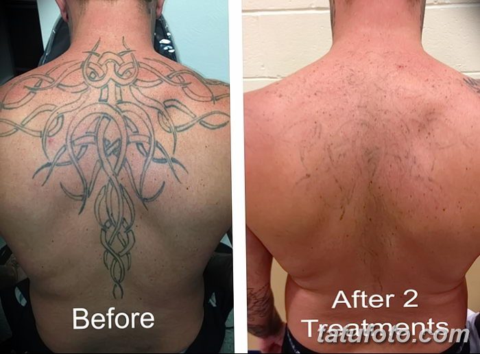 фото Выведение тату лазером от 14.01.2018 №021 - Laser tattoo removal - tatufoto.com