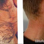 фото Выведение тату лазером от 14.01.2018 №022 - Laser tattoo removal - tatufoto.com