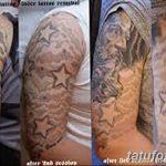 фото Выведение тату лазером от 14.01.2018 №023 - Laser tattoo removal - tatufoto.com