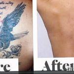 фото Выведение тату лазером от 14.01.2018 №031 - Laser tattoo removal - tatufoto.com
