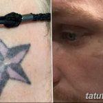 фото Выведение тату лазером от 14.01.2018 №036 - Laser tattoo removal - tatufoto.com
