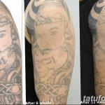 фото Выведение тату лазером от 14.01.2018 №038 - Laser tattoo removal - tatufoto.com