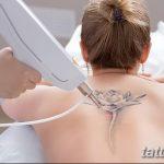 фото Выведение тату лазером от 14.01.2018 №039 - Laser tattoo removal - tatufoto.com