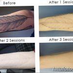 фото Выведение тату лазером от 14.01.2018 №041 - Laser tattoo removal - tatufoto.com