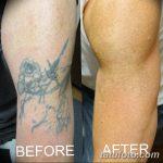 фото Выведение тату лазером от 14.01.2018 №043 - Laser tattoo removal - tatufoto.com