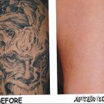 фото Выведение тату лазером от 14.01.2018 №047 - Laser tattoo removal - tatufoto.com