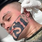 фото Выведение тату лазером от 14.01.2018 №052 - Laser tattoo removal - tatufoto.com