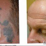 фото Выведение тату лазером от 14.01.2018 №054 - Laser tattoo removal - tatufoto.com