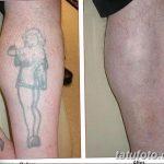 фото Выведение тату лазером от 14.01.2018 №059 - Laser tattoo removal - tatufoto.com