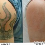 фото Выведение тату лазером от 14.01.2018 №062 - Laser tattoo removal - tatufoto.com