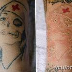 фото Выведение тату лазером от 14.01.2018 №063 - Laser tattoo removal - tatufoto.com