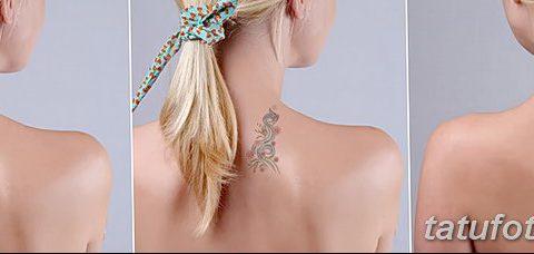 фото Выведение тату лазером от 14.01.2018 №066 - Laser tattoo removal - tatufoto.com