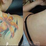 фото Выведение тату лазером от 14.01.2018 №068 - Laser tattoo removal - tatufoto.com