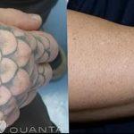 фото Выведение тату лазером от 14.01.2018 №069 - Laser tattoo removal - tatufoto.com
