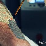 фото Выведение тату лазером от 14.01.2018 №071 - Laser tattoo removal - tatufoto.com 2526234