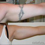 фото Выведение тату лазером от 14.01.2018 №074 - Laser tattoo removal - tatufoto.com