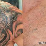фото Выведение тату лазером от 14.01.2018 №077 - Laser tattoo removal - tatufoto.com