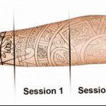 фото Выведение тату лазером от 14.01.2018 №080 - Laser tattoo removal - tatufoto.com