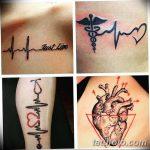фото Медицинские тату от 22.04.2018 №002 - Medical Tattoo - tatufoto.com