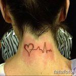 фото Медицинские тату от 22.04.2018 №017 - Medical Tattoo - tatufoto.com