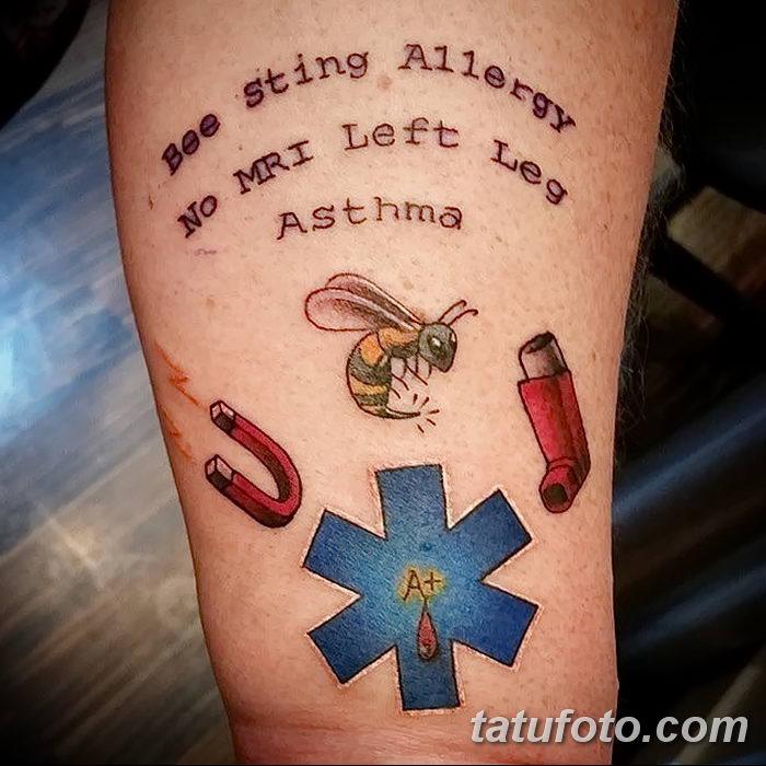 фото Медицинские тату от 22.04.2018 №018 - Medical Tattoo - tatufoto.com