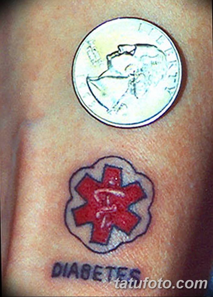 фото Медицинские тату от 22.04.2018 №029 - Medical Tattoo - tatufoto.com