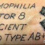 фото Медицинские тату от 22.04.2018 №051 - Medical Tattoo - tatufoto.com
