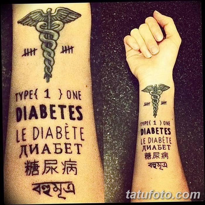 фото Медицинские тату от 22.04.2018 №055 - Medical Tattoo - tatufoto.com