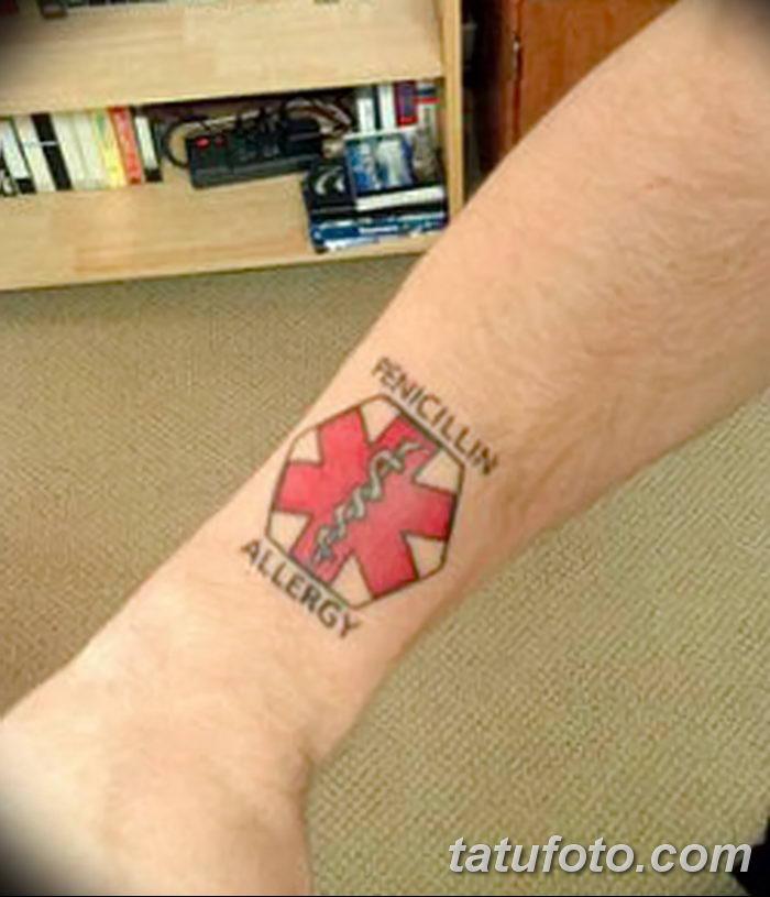 фото Медицинские тату от 22.04.2018 №064 - Medical Tattoo - tatufoto.com