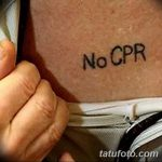 фото Медицинские тату от 22.04.2018 №086 - Medical Tattoo - tatufoto.com